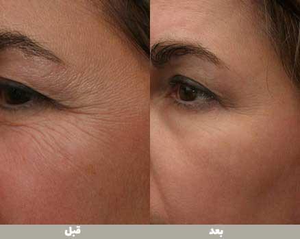 قبل و بعد از استفاده از پلاسما