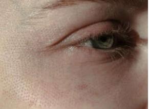 نمونهای از نتایج فوری پس از رفع افتادگی پوست با لیزر در ناحیه دور چشم.