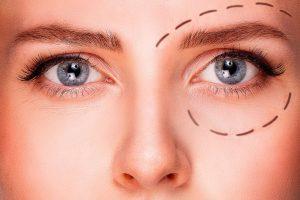 مقدمه ای بر رفع افتادگی پلک با استفاده از پلاسما - قسمت سوم