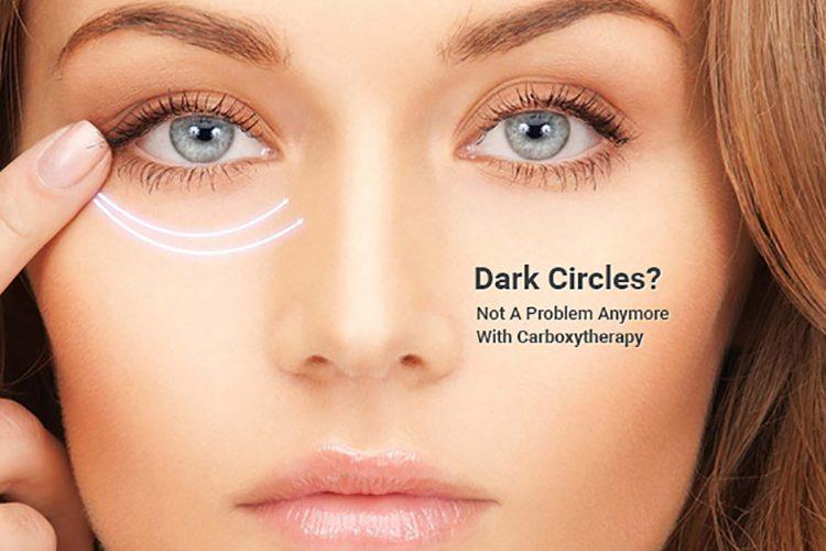 رفع سیاهی اطراف چشم به کمک کربوکسی تراپی