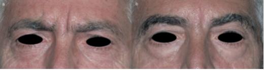درمان خطوط اطراف جشم به کمک کربوکسی تراپی