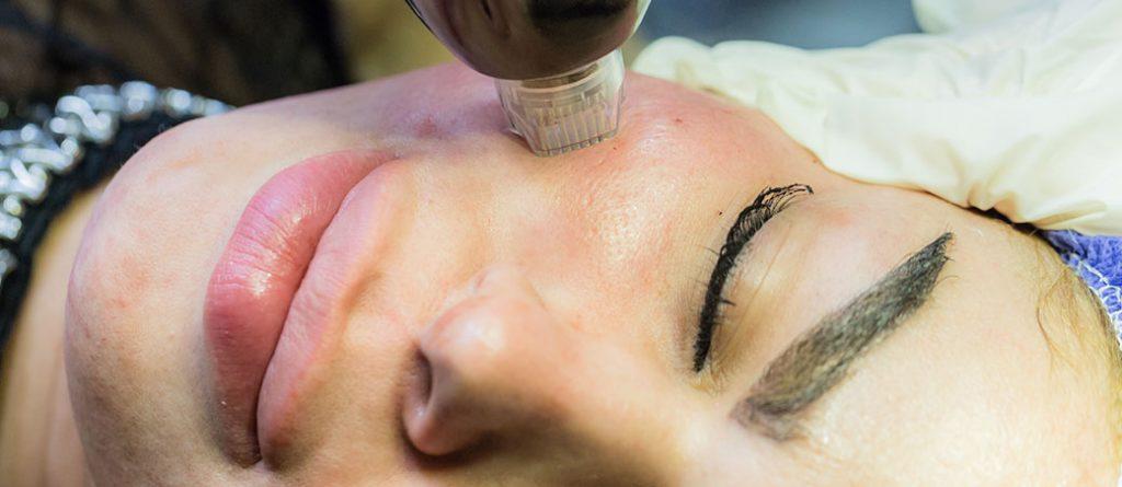 عملکرد آر اف فرکشنال نتل در جوانسازی پوست