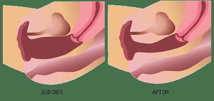 قبل و بعد از درمان توسط آر اف واژینال مادام اکس