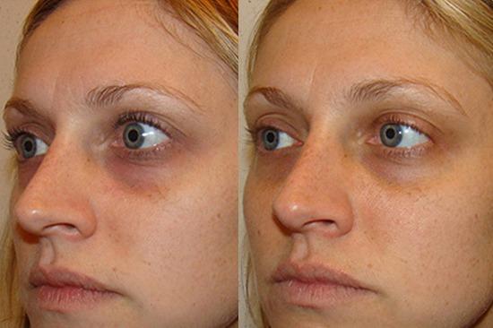 قبل و بعد از درمان سیاهی دور چشم توسط دستگاه کربوکسی تراپی هاریکین