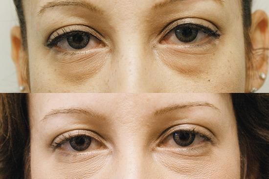 قبل و بعد از درمان گودی زیر چشم توسط دستگاه کربوکسی تراپی هاریکین