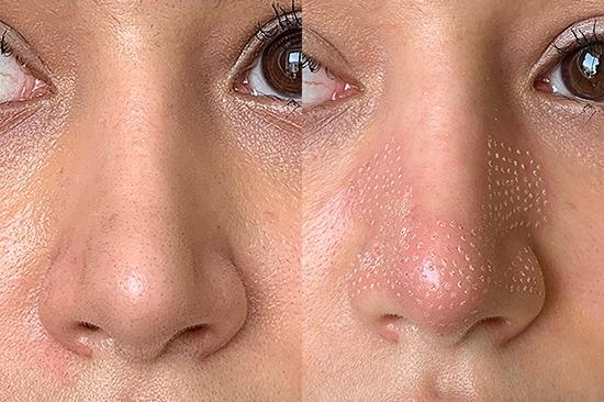 قبل و بعد از لیفت بینی توسط دستگاه پلاسما فایربولت