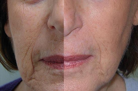 قبل و بعد از جوانسازی توسط دستگاه کربوکسیتراپی هاریکین
