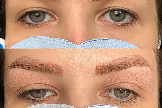 قبل و بعد از درمان توسط پلاسما فایر بولت