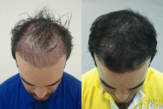 قبل و بعد از درمان توسط دستگاه کربوکسی تراپی هاریکین