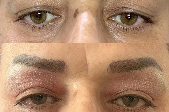 قبل و بعد از بلفاروپلاستی توسط پلاسما فایر بولت
