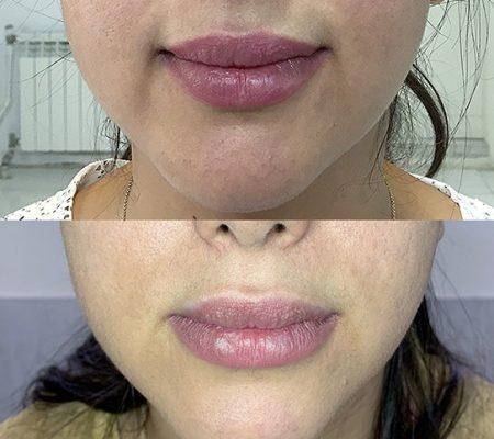 قبل و بعد از درمان توسط آر اف فرکشنال نتل