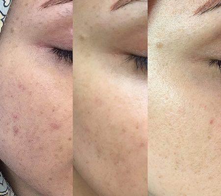 قبل و بعد از درمان لک صورت توسط آر اف فرکشنال نتل