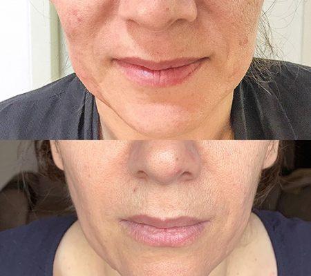 قبل و بعد از درمان خط خنده توسط آر اف فرکشنال نتل